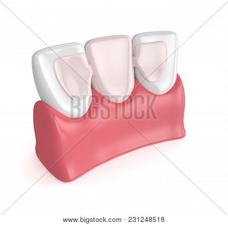 3D Render Of Teeth With Dental Maryland Bridge