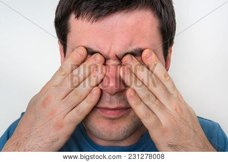 Man With Eyes Pain Is Holding His Aching Eyes - Body Pain Concept