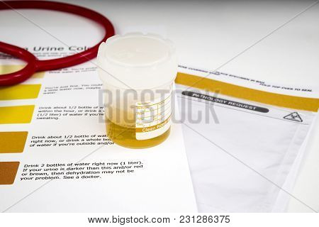 Human Urine Sample Human Urine Sample Waiting For Testing, With A Dehydration Color Chart And Transi