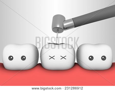 Tooth 3d Concept Caries Tooth Dental Clinic