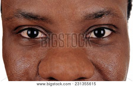 The Big Eyes Of An African American Man In A Close Up Image, Looking Strait Into The Camera, Isolate