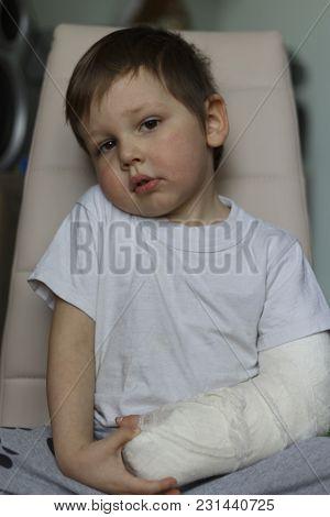 Boy Feels Pain From Broken Arm In Plaster