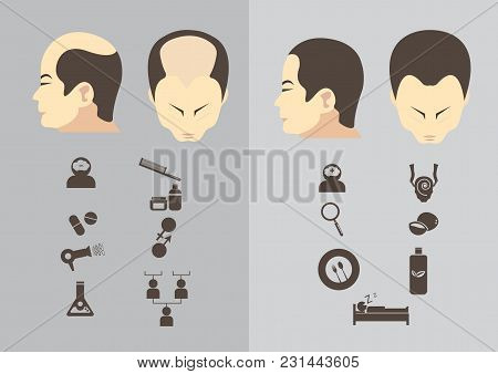 Male Hair Loss Stages Set. Man Before And After Hair Treatment And Hair Transplantation. Male Patter