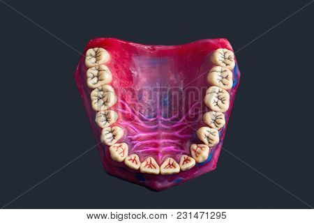 Dental Grooves On A Red Wax Dental Model On A  Grey Background