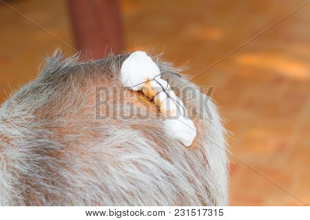 Close-up Dressed Wound With White Gauze On Head Of Asian Senior Man