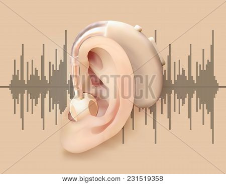 Digital Hearing Aid Behind The Ear. Ear And Sound Amplifier On Background Of  Sound Wave Diagram. Tr