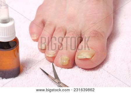 The Fingers Of The Male Foot, Infected With A Nail Fungus, Scissors And A Bottle Of Medicine.