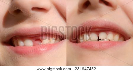 Loss Of Baby Tooth. Close Up Of Baby Teeth. Before And After Lost Milk Tooth Boy Set. Healthy Toddle