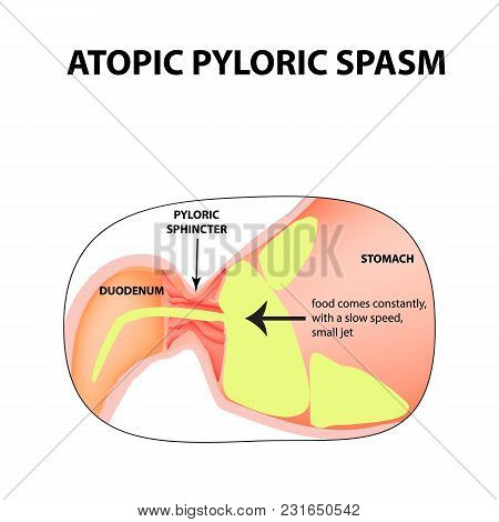 Spasms Of The Pylorus. Pylorospasm. Atonic. Pyloric Sphincter Of The Stomach. Infographics. Vector I