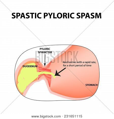 Spasms Of The Pylorus. Pylorospasm. Spastic Pyloric Sphincter Of The Stomach. Infographics. Vector I