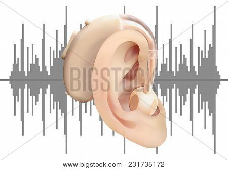 Digital Hearing Aid Behind The Ear, On Background Of Sound Wave Diagram. Treatment And Prosthetics O