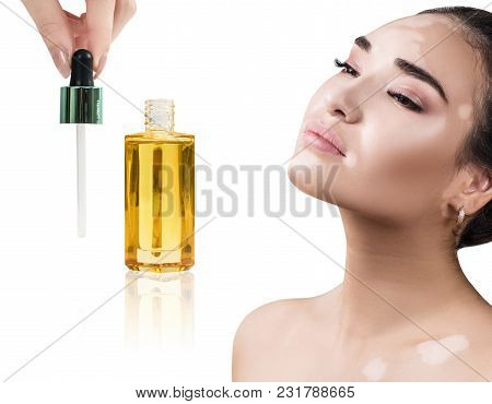 Beautiful Girl With Vitiligo Use Cosmetic Oil For Beauty. Skincare Concept. Isolated On White.