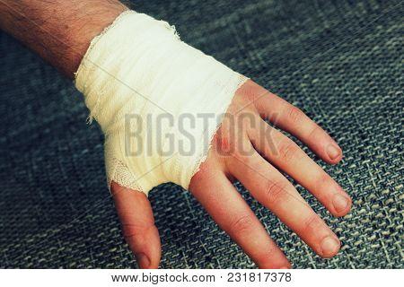 Injured Painful Hand With White Gauze Bandage.