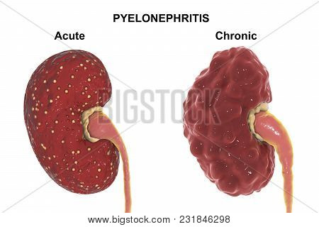 Acute And Chronic Pyelonephritis, Medical Concept, 3d Illustration Showing Focal Abscesses In Kidney
