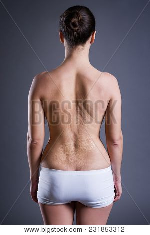 Woman With A Large Scar After Burn On The Back, Rear View On Gray Background