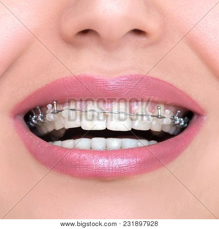Closeup Ceramic And Metal Braces On Teeth. Self-ligating Brackets. Orthodontic Treatment. Woman Smil