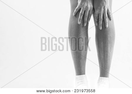 Dry Skin On The Legs, Itching Of The Legs, A Person Suffers From Itching On His Legs In Consequence