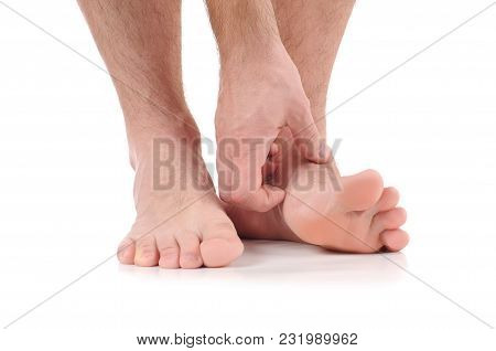 Man Scratch The Itch With Hand. Infection Of The Feet Caused By Fungus.