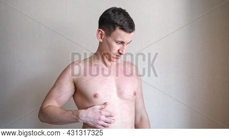 Upset Nervous Young Man Scratches Bare Chest By Hand Suffering From Annoying Skin Itching Near Beige