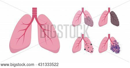 Set Of Lungs Illustrations. Healthy And Sick Lungs. Human Respiratory System Icons