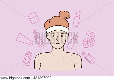 Skin Problems And Skincare Concept. Face Of Young Stressed Sad Teen Boy Standing With Naked Shoulder