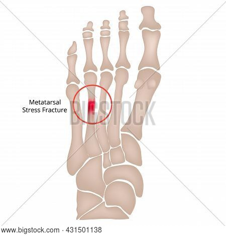 Stress Fracture. Marching Fracture Of The Foot. Fracture Of The Metatarsal Bones In The Foot. Anatom