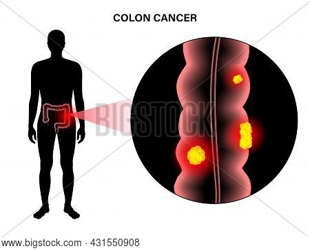 Colorectal Cancer Concept. Development Of Cancer From The Colon Or Rectum To The Whole Large Intesti