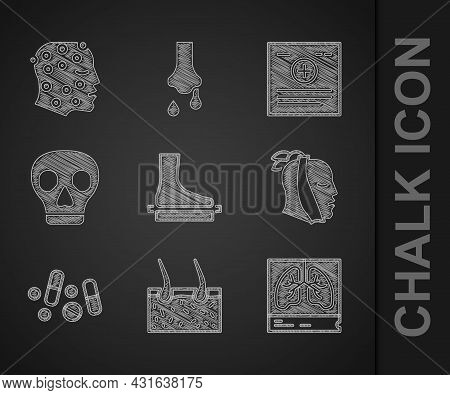 Set Flat Foot, Hair Covering Skin, Lungs X-ray, Toothache, Medicine Pill Or Tablet, Skull, Clinical