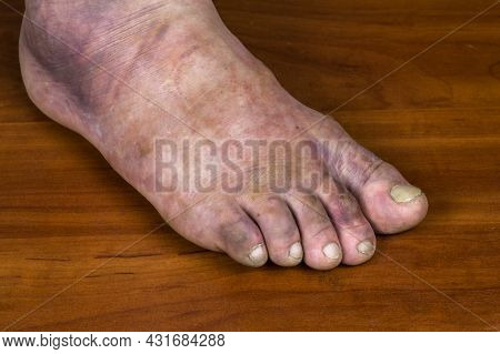 Human Foot Fracture. Huge Purple Bruise On A Man's Leg.