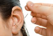 acupuncture therapy on auricle horizontal very close up photo poster
