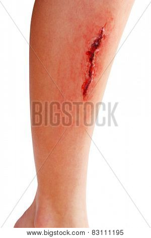 Injured leg with blood isolated on white