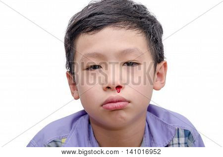 Young Asian boy with bleeding from nose over white