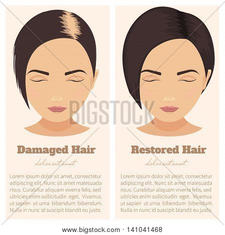 Woman with damaged and restored hair. Hair condition before and after hair treatment and hair transplantation. Female pattern hair loss set. Hair care concept. Isolated vector illustration.
