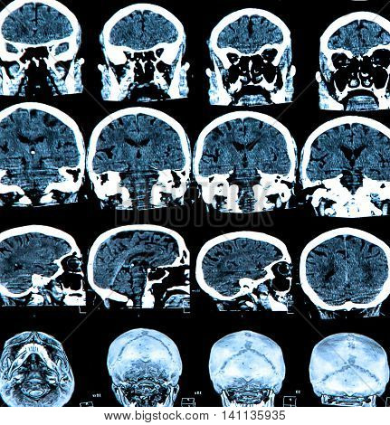 MRI scan of the human brain: medical concepts