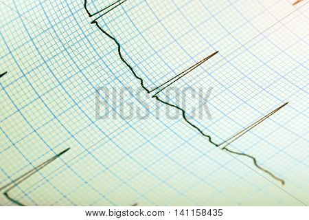 ECG record paper as medical background.Macro photo