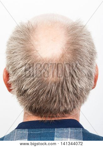 Hair loss. Bald man