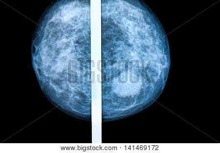 mammography breast scan X-ray image - medical concepts