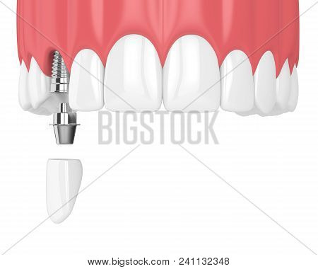 3D Render Of Upper Jaw With Teeth And Dental Canine Implant