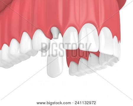 3D Render Of Upper Jaw With Teeth And Dental Canine Crown