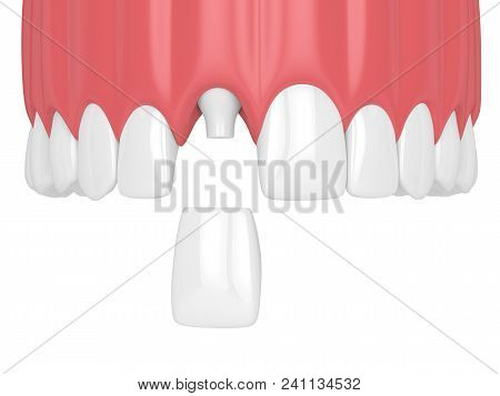 3D Render Of Upper Jaw With Teeth And Dental Incisor Crown