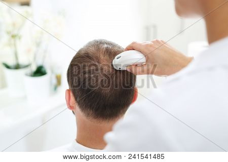 Microscopic Analysis Of The Condition Of Hair And Scalp.  The Head Of A Man With Thinning Hair Durin