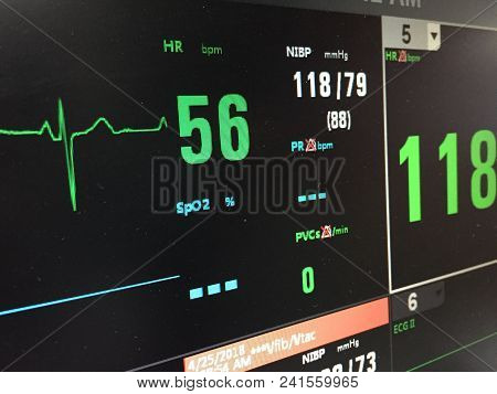 The Heart Rate Monitor Show Patient's Status On Display.electrocardiogram In Hospital Surgery Operat