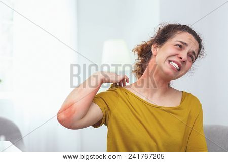 Painful sunburn. Adolescent lady tourist experiencing pain and discomfort caused by a painful sunburn on her neck poster