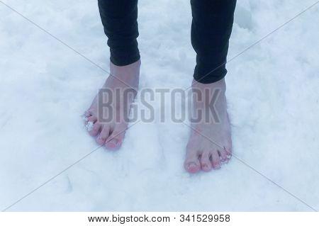 Frozen Reddened Barefoot Male Feet In The Snow