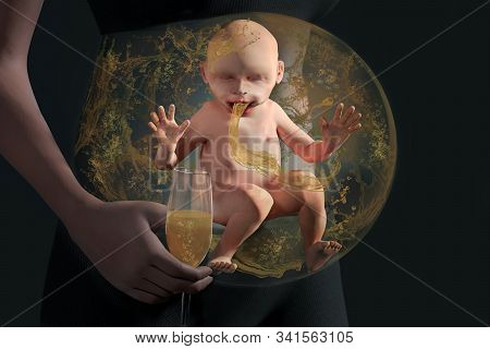 Alcohol Baby In Baby Bump. Unborn Baby In Baby Bump Drinks Sparkling Wine Passively. Unborn In The W