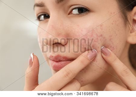 Teen Girl With Acne Problem Squeezing Pimple On Her Face, Closeup