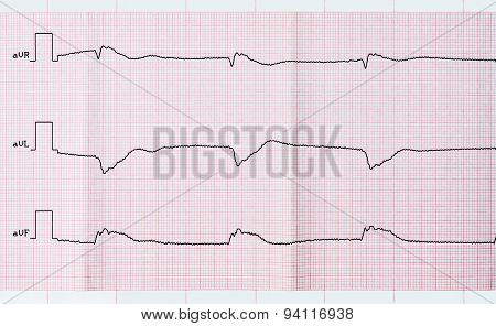 Tape ECG after clinical death and a successful resuscitation. The acute period of macrofocal posterior myocardial infarction poster