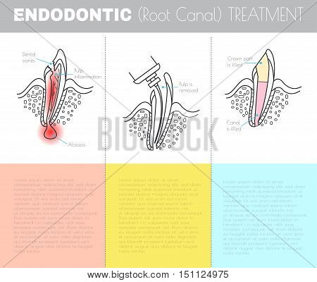 Root canal treatment. Dental infographic.. All objects are conveniently grouped and are easily editable.