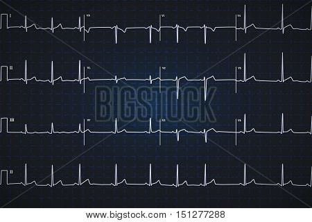 Typical human electrocardiogram white graph on dark blue background with marks