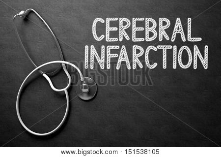 Medical Concept: Cerebral Infarction -  Black Chalkboard with Hand Drawn Text and White Stethoscope. Top View. Medical Concept: Black Chalkboard with Cerebral Infarction. 3D Rendering.